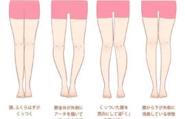 下半身太りになる2つの姿勢タイプ。あなたはどっちタイプですか?